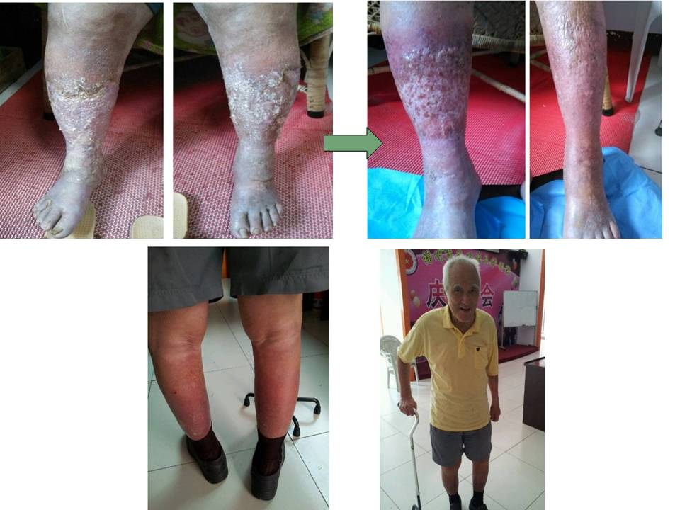 中国福州 酵素帮助糖尿脚有腐烂病人