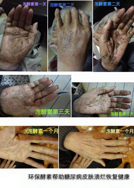中国糖尿病并发症双手起泡