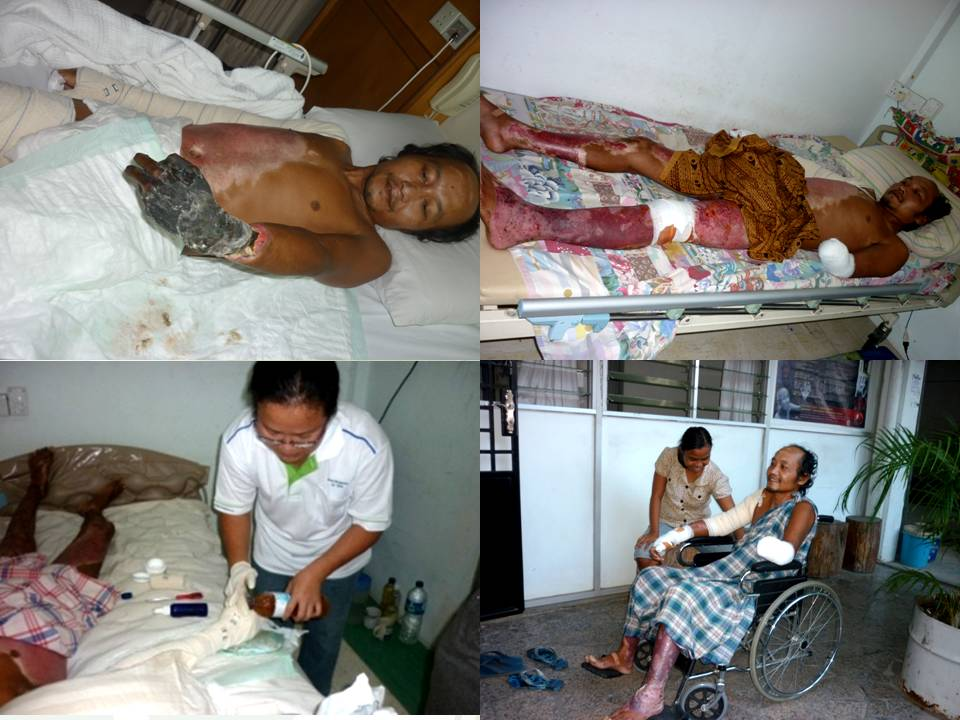巴淡岛 案例1:电炸伤