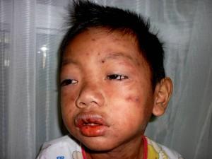 巴淡岛 艾滋病病发致皮肤溃烂与鹅口疮
